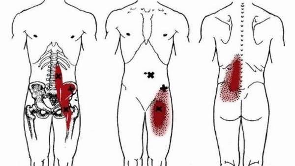 Подвздошная мышца где находится