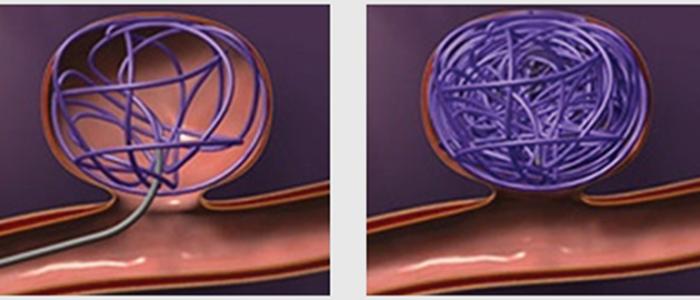 Проведение и виды эндоваскулярной эмболизации