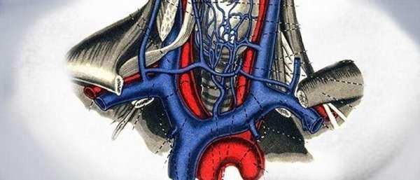 Эктазия внутренней и наружной яремной вены