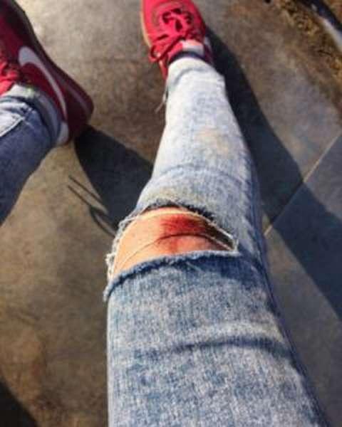 Как вывести кровь с джинсов