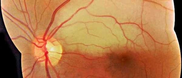Симптомы и лечение окклюзии центральной артерии сетчатки