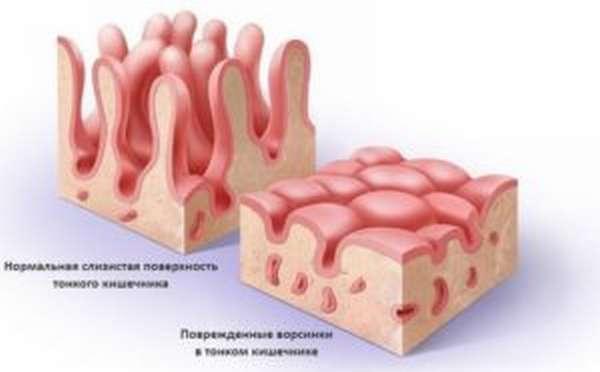 Глютен: что это и почему он вреден, где содержится, симптомы непереносимости