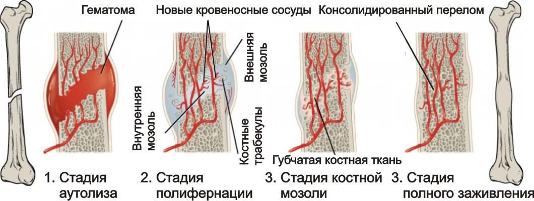 Ускорить регенерацию костной мозоли thumbnail