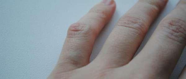 Набухла вена на пальце руки