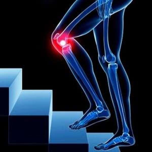 Кт коленного сустава что показывает