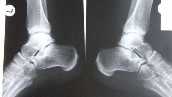Рентген голеностопного сустава – показания, противопоказания, расшифровка результатов и другие методы диагностики заболеваний