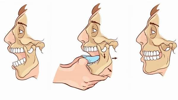 Как лечат вывихи челюстных суставов thumbnail