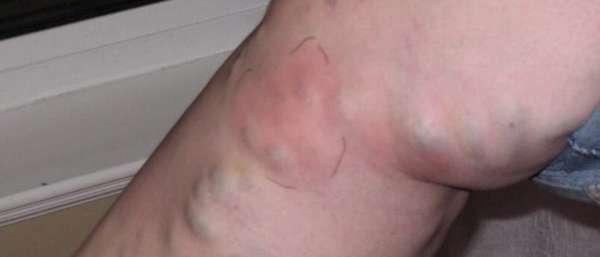 Причины и лечение проблем с венами на ногах