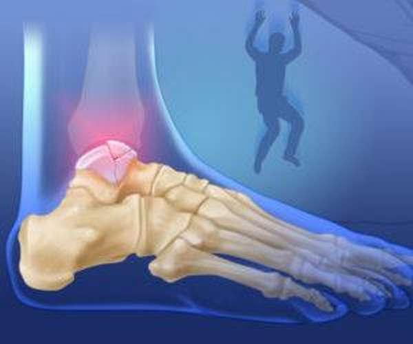 Отрыв костного фрагмента таранной кости