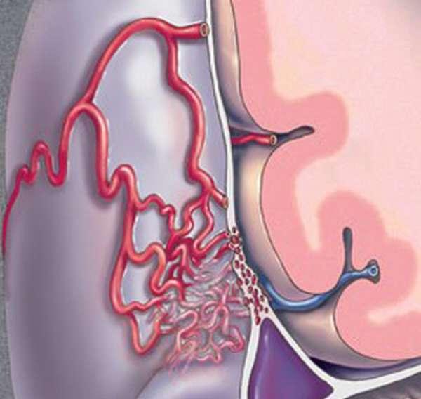 Артериовенозные фистулы