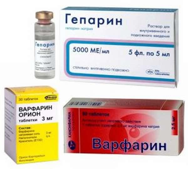Причины и лечение тромбоза подвздошной вены