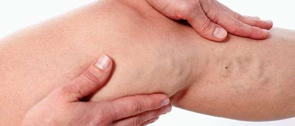 Болит вена на ноге