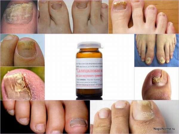 Салициловая мазь (кислота) от грибка стопы и ногтей - иструкция по применению, отзывы