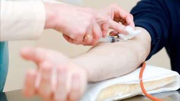 Симптомыи лечение криоглобулинемического васкулита