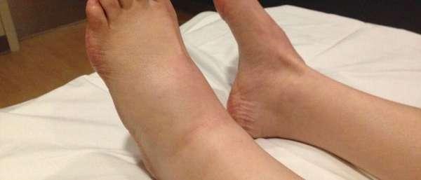 Почему дергаются вены на ногах