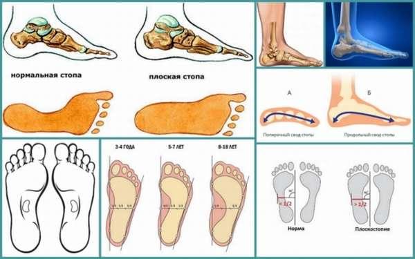 Боли при плоскостопии что болит и как снять болевые ощущения