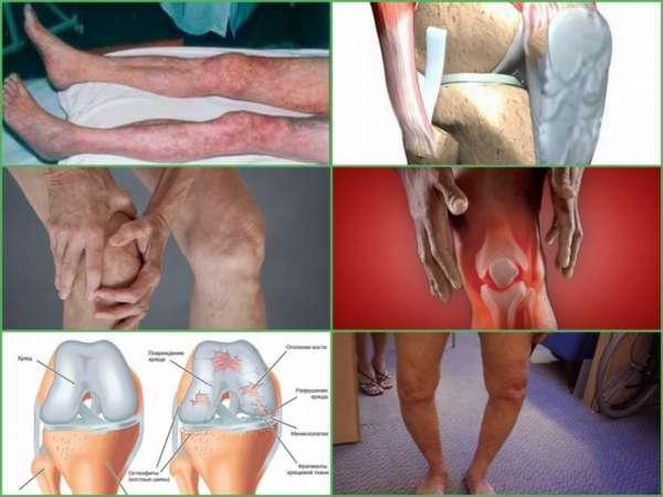 Отек ноги после артроскопии коленного сустава thumbnail