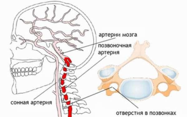 Асимметрия экстракраниальных отделов позвоночных артерий