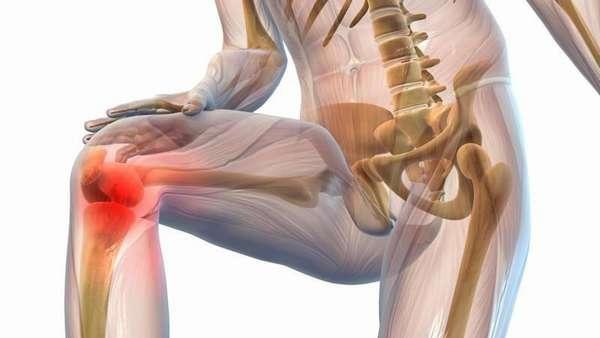 Как лечить привычный вывих коленного сустава thumbnail