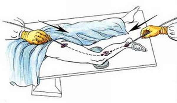 Лазерная коагуляция варикозных вен на ногах