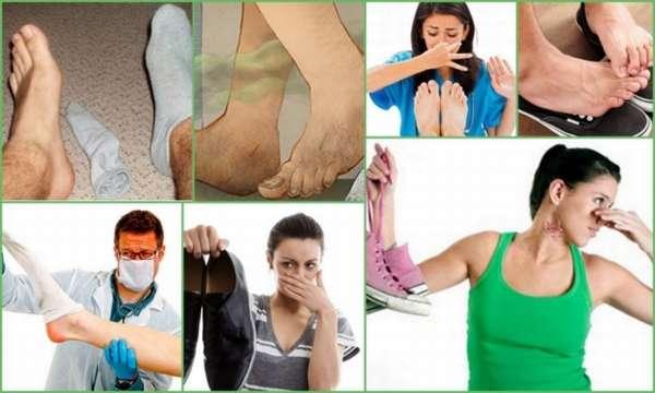 Потеют ноги в обуви и пахнет обувь - что делать