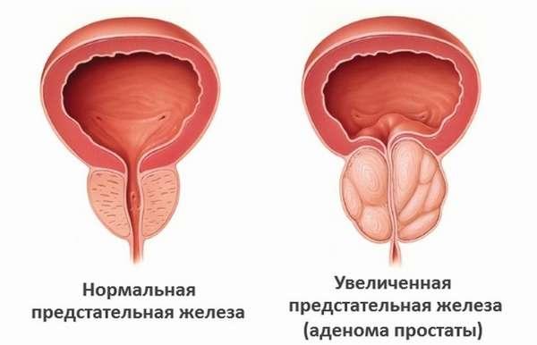 Как распознать аденому простаты