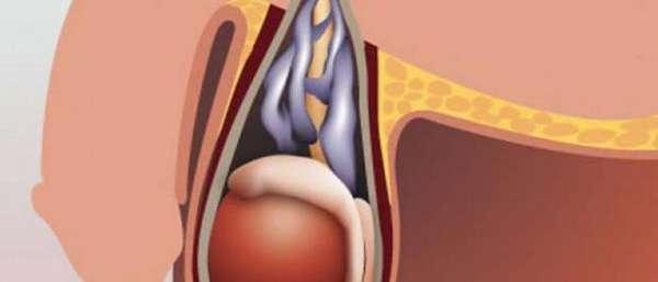Как лечить варикоцеле без операции?