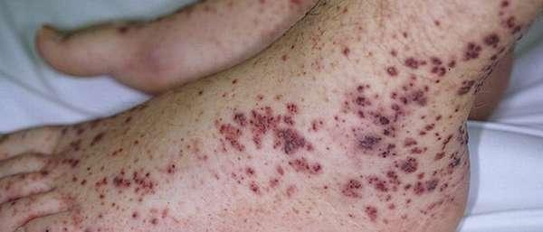 Симптомы и лечение геморрагического васкулита