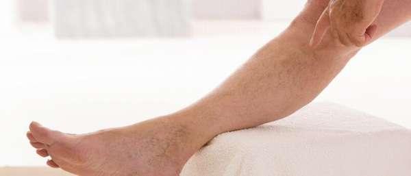 Как лечить варикоз в домашних условиях?