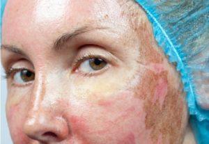 Какую чистку лица делают при куперозе?