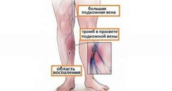 Упражнения при венозной недостаточности