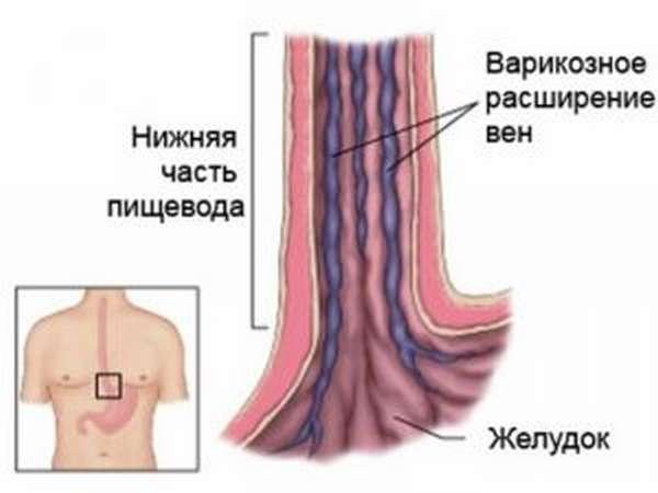 Виды варикозного расширения вен