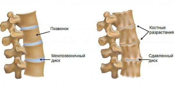 Поражение суставов шейного отдела позвоночника
