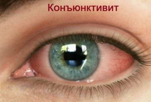 Капли Офтан Катахром для глаз: польза, показания, применение, аналоги