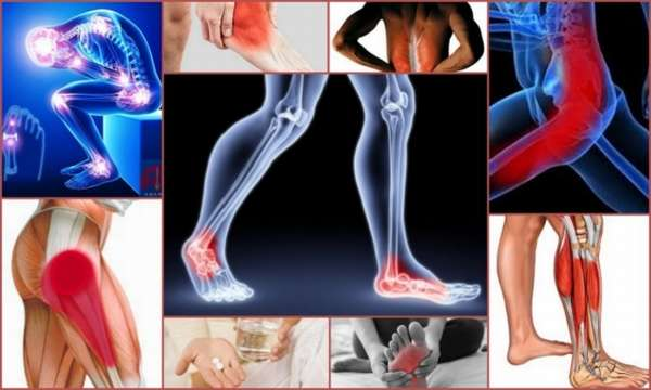 Блуждающая ноющая боль в ноге