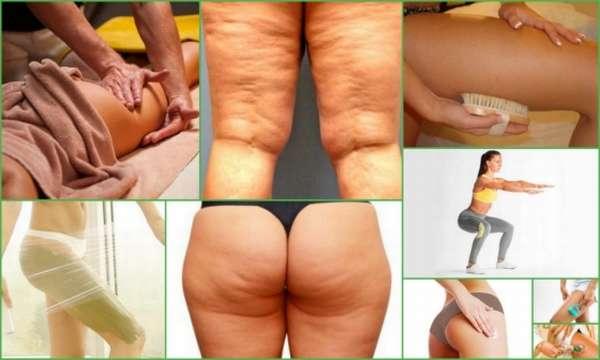 Апельсиновая корка на попе и ногах: причины, как избавиться