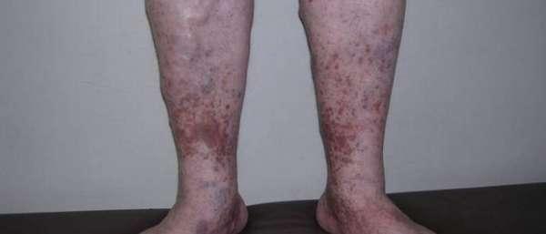 Лечение венозной недостаточности ног