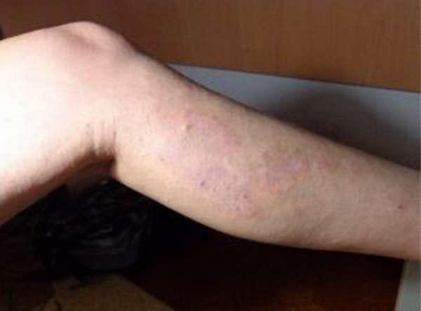 Ортопедическая подушка для ног при варикозном расширении вен