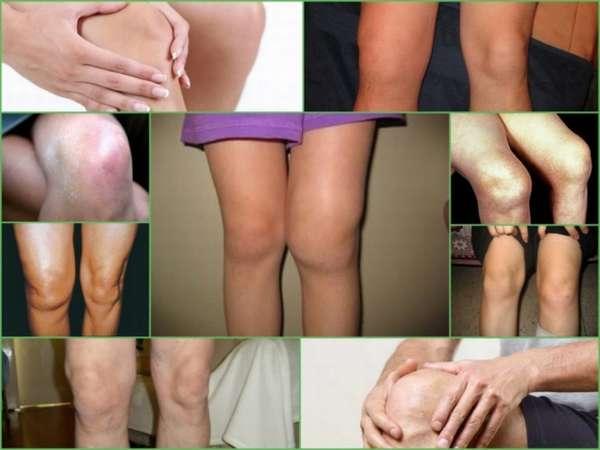 чем снять воспаление суставов при артрозе колена почему