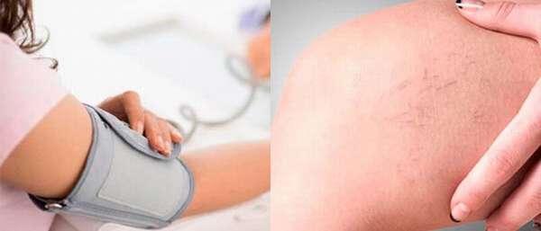 Гипертония из-за варикоза
