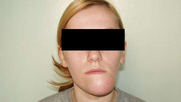 Как лечат вывихи челюстных суставов
