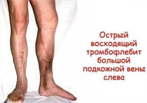 Симптомы и лечение острого тромбофлебита