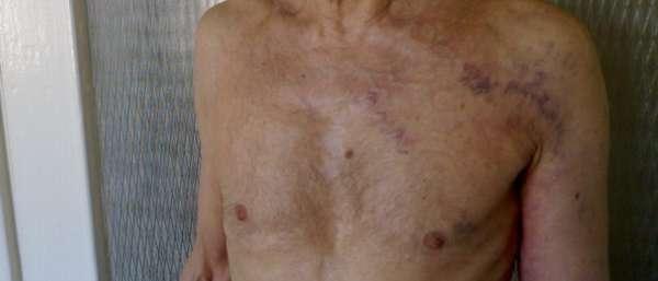 Варикоз вены на груди