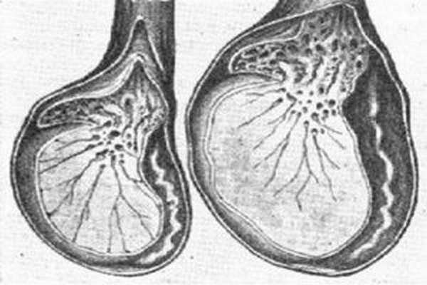 Варикоцеле на яичках у мужчин