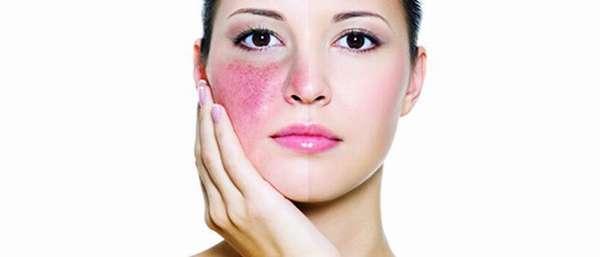 Лечение купероза на лице дома