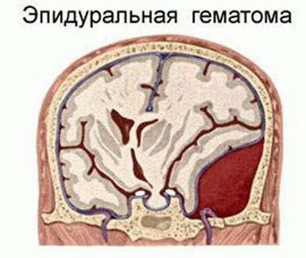 Тромболитические средства