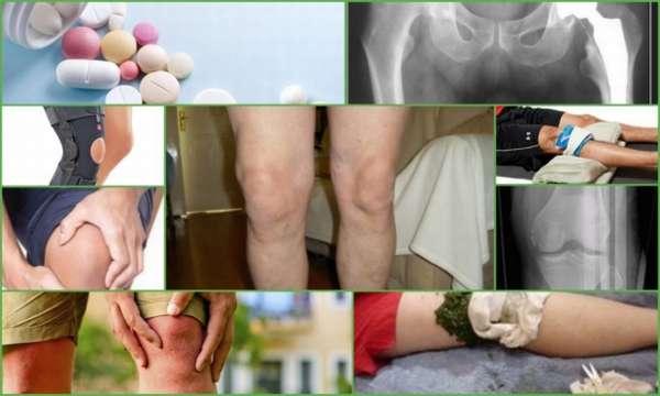 Мазь для лечения защемления нерва в тазобедренном суставе
